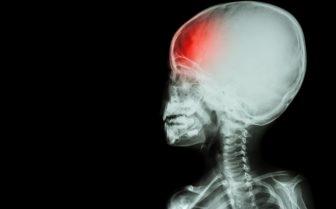 child head injury x ray
