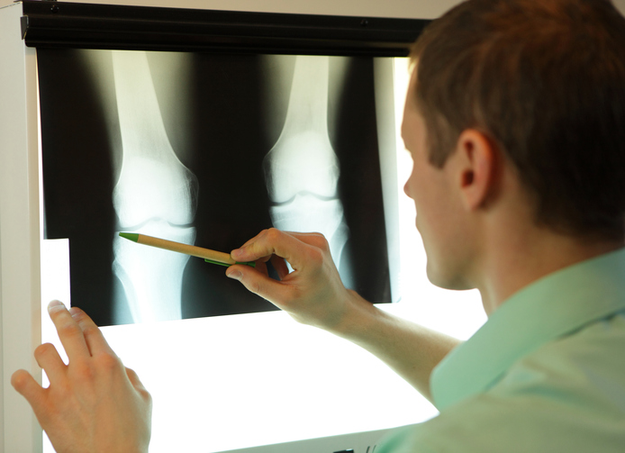 specialist watching image of knees and lower limbs at x-ray film viewer