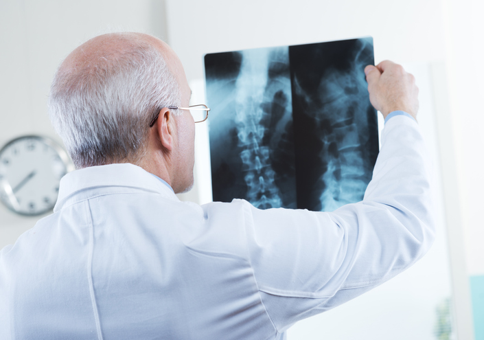 Doctor looking at x-ray images of human spine.
