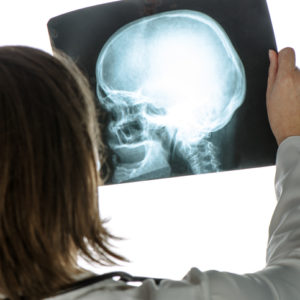 Doctor analyzing human skull x-ray screening image in hospital office during medical exam